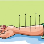 acupuncture 8